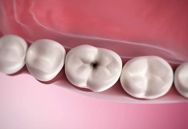 tooth-decay-and-cavities-image
