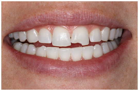 chipped-tooth-smile