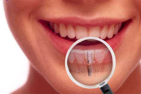 Dental Implants - Westway Dental Etobicoke Dentist