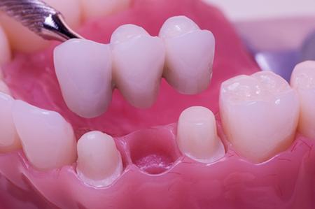 Bridges & Crowns - Westway Dental Etobicoke Dentist