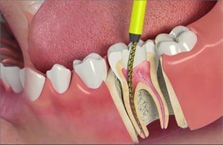 Root Canal - Westway Dental Etobicoke Dentist