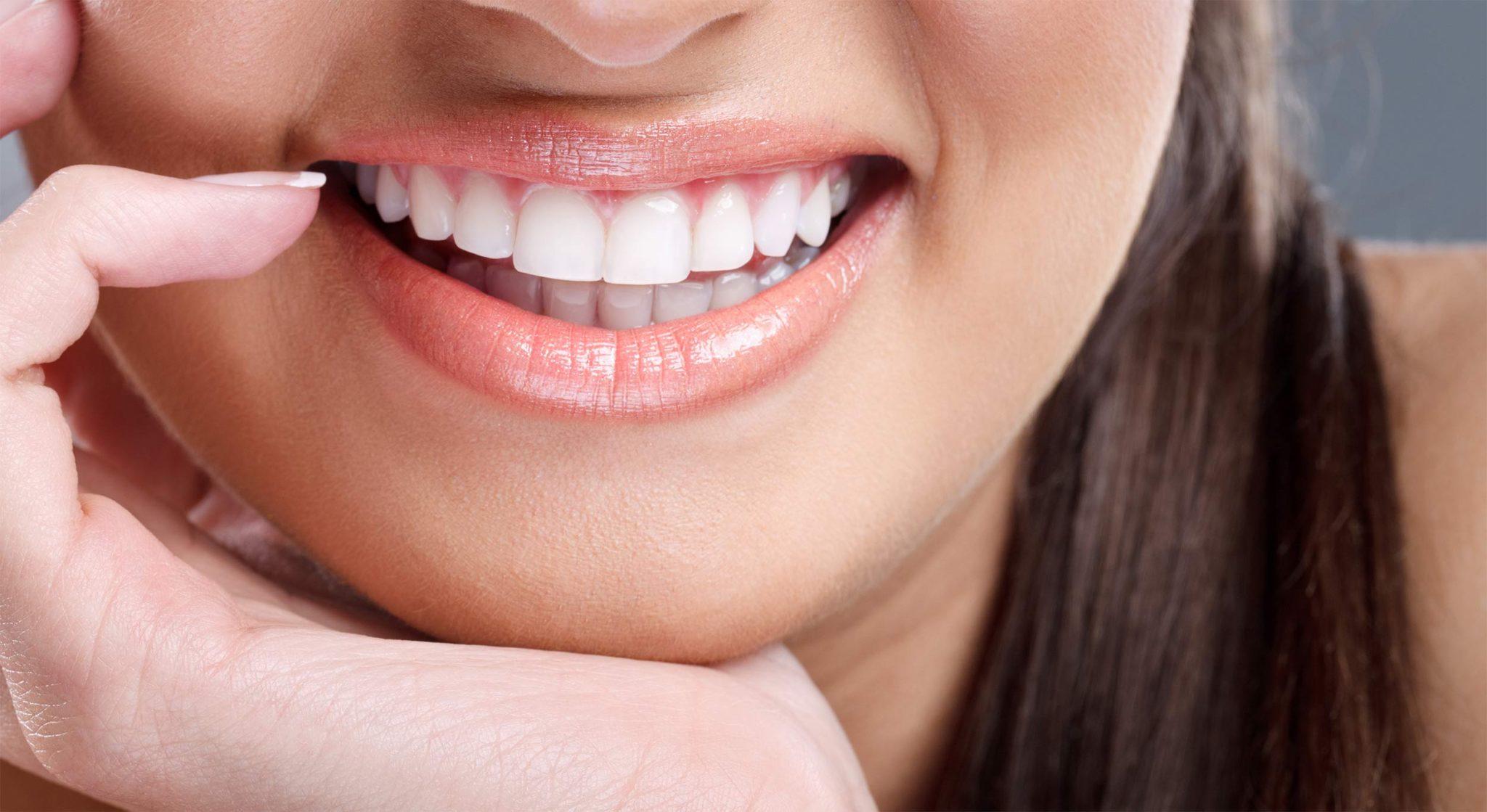 фото зубов с винирами