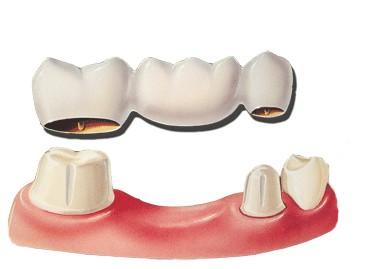 dental-bridge-diag