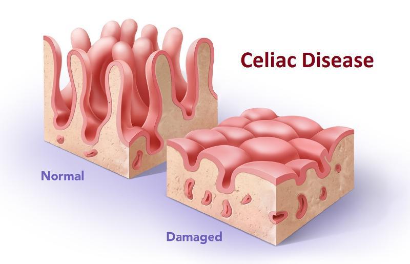 Celiac-505540541852