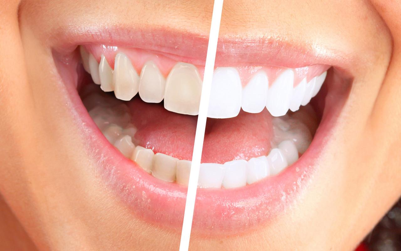 Teeth-Whitening (1)